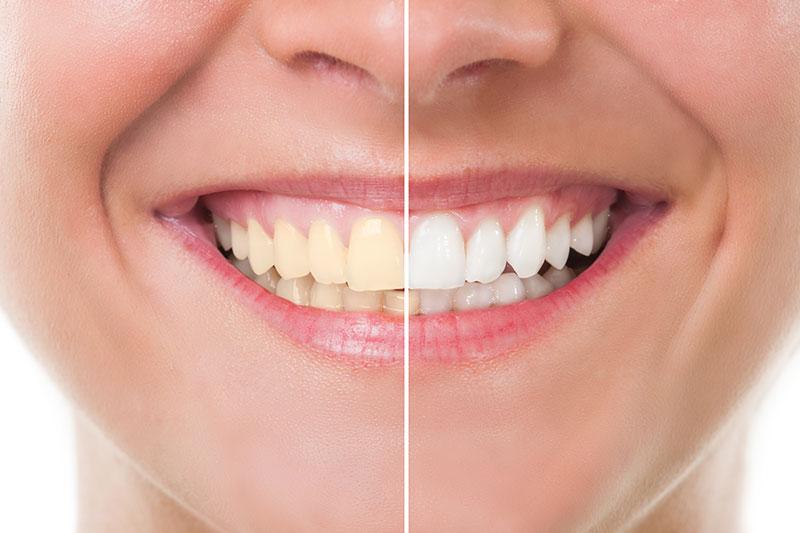 Teeth Whitening - Lawndale Dental Center, Chicago Dentist